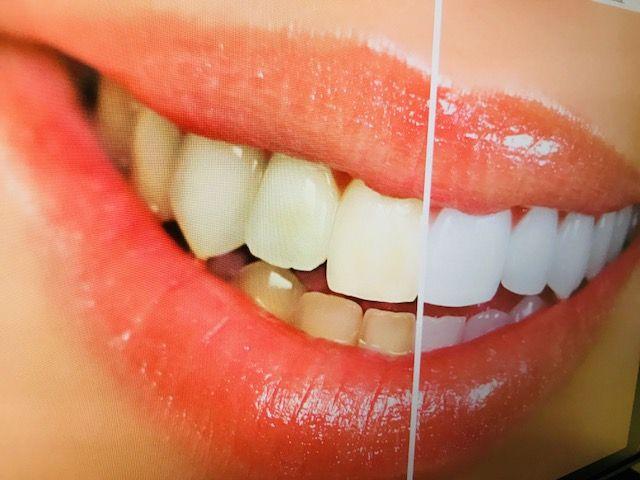 Blanqueamiento dental en sevilla
