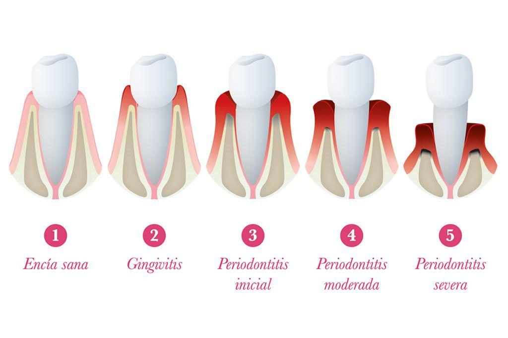 periodontitis causas