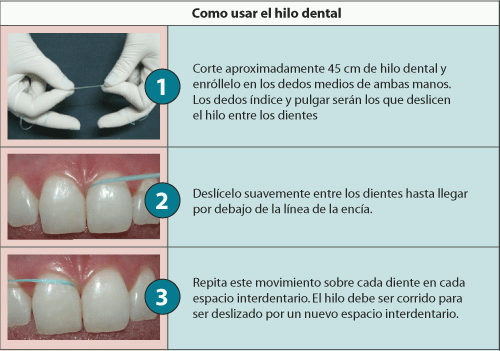 limpiar las encías con hilo dental