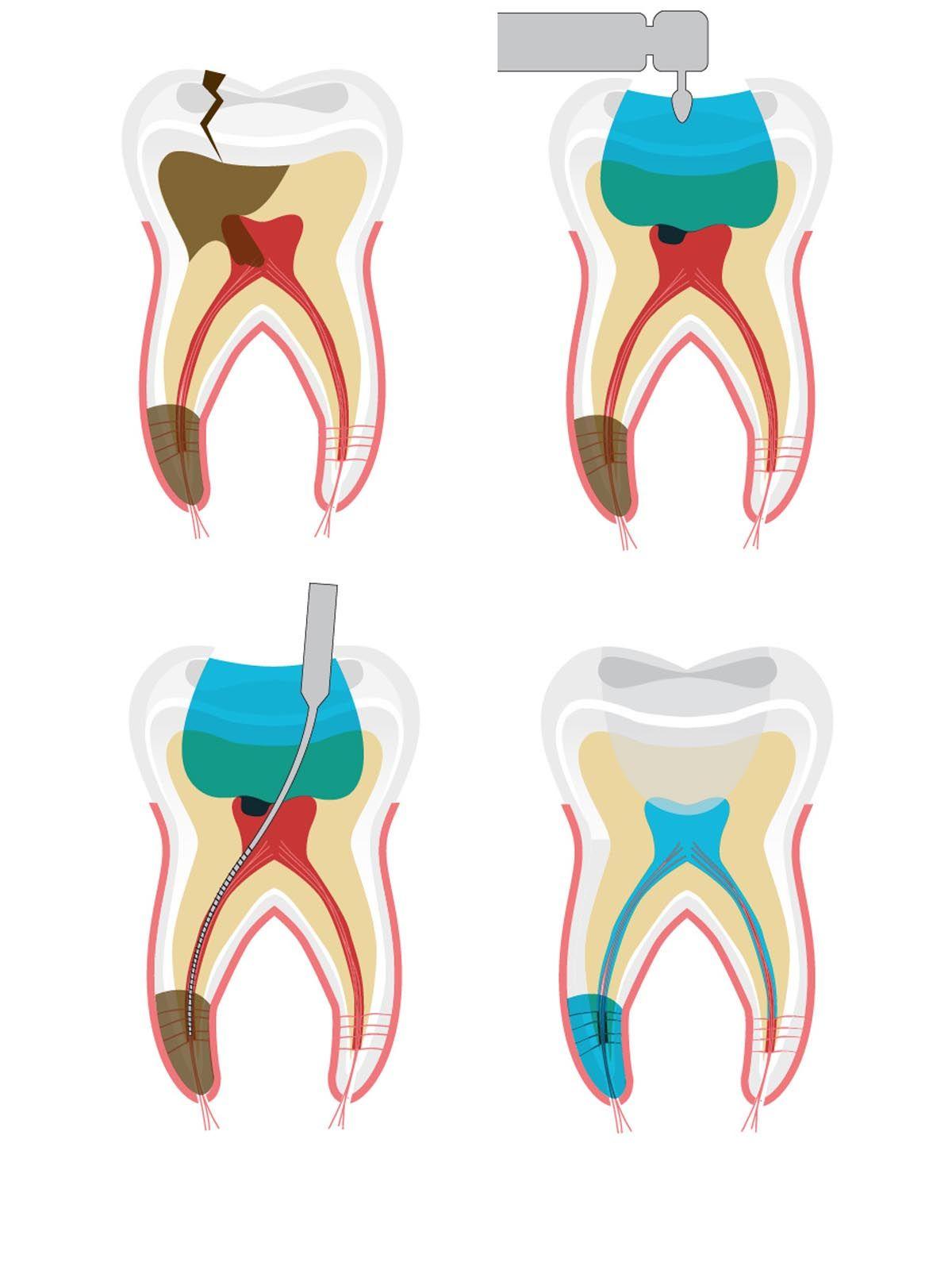 endodoncia en sevilla