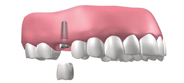 Como cuidar los implantes dentales
