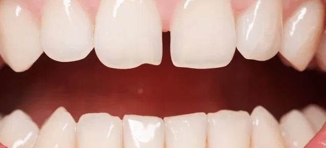 Qué es el diastema dental