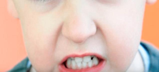 bruxismo infantil