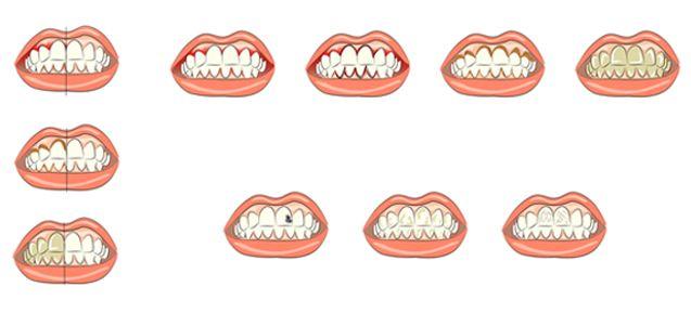 problemas dentales más habituales