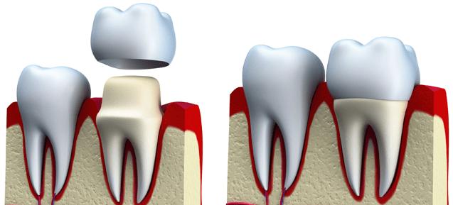 Qué es la corona dental Duele al ponerse